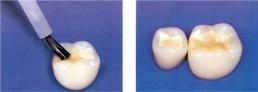 Foto von Füllungstherapie Zement